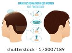 female hair loss treatment with ... | Shutterstock .eps vector #573007189