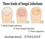 three types of fungal infection ... | Shutterstock .eps vector #574411519