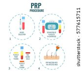 platelet rich plasma procedure... | Shutterstock .eps vector #577615711
