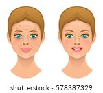 problems skin | Shutterstock .eps vector #578387329