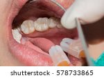 close up of female patient... | Shutterstock . vector #578733865