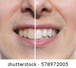 teeth before and after | Shutterstock . vector #578972005