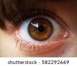 Small photo of Eye