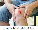 broken bleeding knee   deep... | Shutterstock . vector #583782475