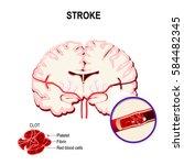 blood clot in the human brain.... | Shutterstock .eps vector #584482345