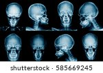 x ray skull collection in blue... | Shutterstock . vector #585669245