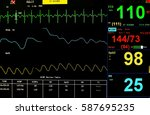 vital signs monitoring in icu... | Shutterstock . vector #587695235