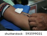 arm blood donor at donation. | Shutterstock . vector #593599031