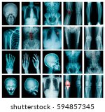 high quality x ray collection     Shutterstock . vector #594857345