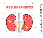 pyelonephritis disease... | Shutterstock . vector #595840019
