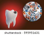 tooth with dental caries and... | Shutterstock . vector #595951631