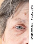 Small photo of Old woman with light blue eyes and showing a cyst skin