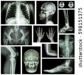 set of x ray multiple part of... | Shutterstock . vector #598151375