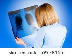 female doctor carefully x ray... | Shutterstock . vector #59978155