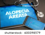Small photo of Alopecia areata (cutaneous disease) diagnosis medical concept on tablet screen with stethoscope.