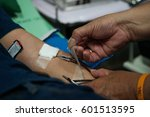 arm blood donor at donation. | Shutterstock . vector #601513595