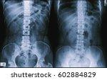 Small photo of Film x-ray abdomen (Abdomen supine,Abdomen upright view) : Unremarkable study