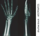 Small photo of Film x-ray wrist (AP,Lateral view) : Incomplete fracture at left distal radius, on healing process