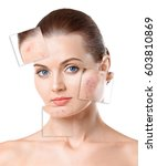 Small photo of Woman face before and after acne treatment procedure. Skin care concept.