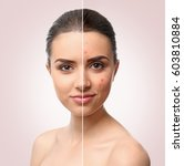 woman face before and after... | Shutterstock . vector #603810884
