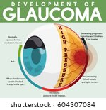 infographic poster with... | Shutterstock .eps vector #604307084