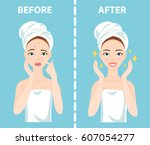before after set of upset... | Shutterstock .eps vector #607054277