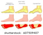 vector illustration of the foot ... | Shutterstock .eps vector #607509407