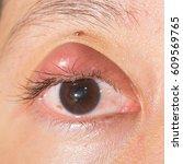 Small photo of Close up of eyelids infection, hordeolum, stye, abscess during eye examination.