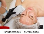 non surgical face lifting. smas ... | Shutterstock . vector #609885851