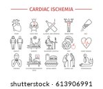 cardiac ischemia. symptoms ... | Shutterstock .eps vector #613906991