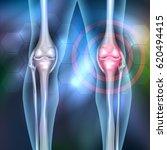 leg joint anatomy 3d...   Shutterstock .eps vector #620494415