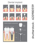 dental implant is an artificial ... | Shutterstock .eps vector #620980559