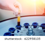 platelet rich plasma...