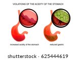 vector illustration of high and ... | Shutterstock .eps vector #625444619