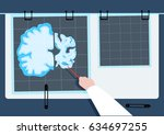 a physician examines part of a... | Shutterstock .eps vector #634697255