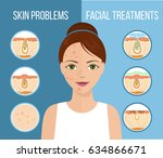 girl with skin problems on her... | Shutterstock . vector #634866671