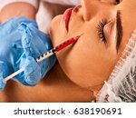 filler injection for female... | Shutterstock . vector #638190691