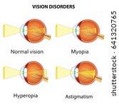 common vision disorders.... | Shutterstock .eps vector #641320765