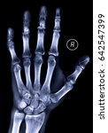 x ray of the hand | Shutterstock . vector #642547399