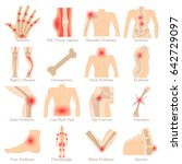 orthopedic diseases icons set.... | Shutterstock .eps vector #642729097