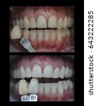 Small photo of teeth whitening ,before and after