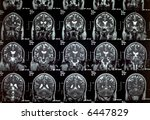 a real mri  mra  magnetic... | Shutterstock . vector #6447829