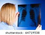 female doctor carefully x ray... | Shutterstock . vector #64719538