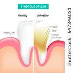 dental problem health care.... | Shutterstock .eps vector #647346031