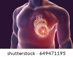 heart attack  conceptual image... | Shutterstock . vector #649471195