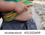 chubby kid with obesity.  | Shutterstock . vector #651202609
