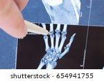 x ray scan of hand  bones and...   Shutterstock . vector #654941755
