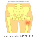vector illustration of healthy...   Shutterstock .eps vector #655271719