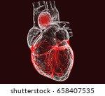 aneurism of ascending aorta.... | Shutterstock . vector #658407535