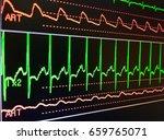 heart cardiogram of wave in... | Shutterstock . vector #659765071